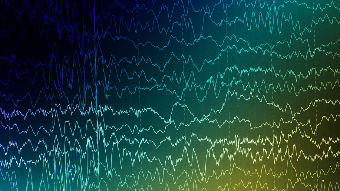 Implants And Deep Learning Could Predict Epilepsy Attacks