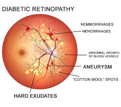 Artificial Intelligence technology to detect diabetes retinopathy