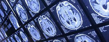 Medical Imaging, Machine Learning to Align in 10 Key Areas