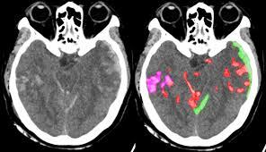 Deep learning algorithm helps diagnose neurological emergencies