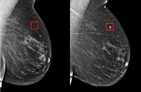 Breast cancer prediction: How Artificial Intelligence can save lives?
