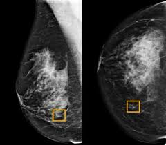 Google's AI for mammograms doesn't account for racial differences
