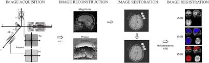 The Importance of Image Resolution in Building Deep Learning Models for Medical Imaging