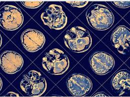 AI and machine learning facilitate pioneering research on Parkinson's