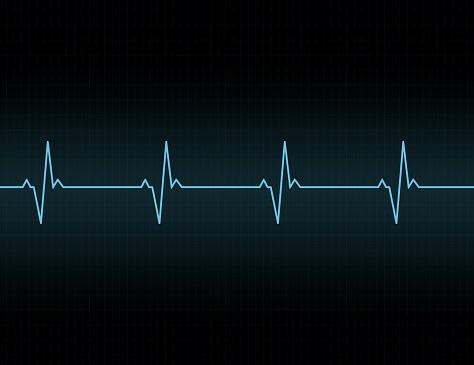 Deep Learning Model Detects Electrolyte Imbalance via ECG