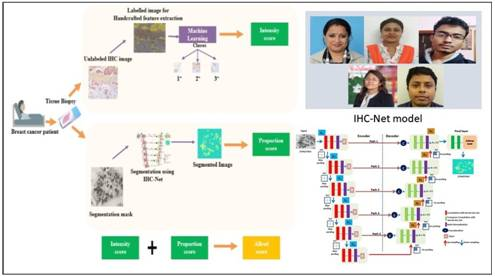 IASST deploys deep learning network for breast cancer prognosis